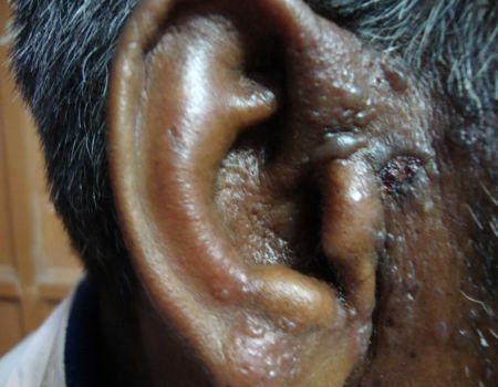 6-herpes-zoster-820A36CF6E5-3FF4-2E30-1A9D-0050E6388C5C.jpg